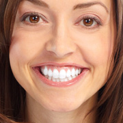 BriteSmile Teeth Whitening